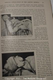 """Books: Collection of 2 books including """"The Rules og Aseptic and Antiseptic Surgery"""" by Arpad G. Gerster"""